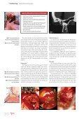 Perforierende Gesichtsverletzungen - Park Klinik Weißensee - Seite 2