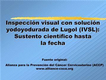Inspección visual con solución yodoyodurada de Lugol (IVSL ... - Path
