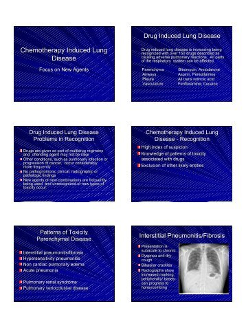 Chemotherapy Induced Lung Disease