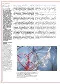 Effiziente Gewichtsabnahme dank Chirurgie - Efficient weight loss through surgery - Seite 3