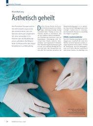 Wundheilung - Plastische Chirurgie Dr. Reus