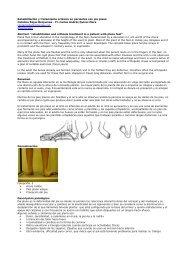 Rehabilitacin y tratamiento ortsico en pacientes con pie plano
