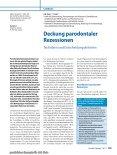 Elektronischer Sonderdruck für Deckung parodontaler Rezessionen ... - Seite 2
