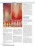 Elektronischer Sonderdruck für Deckung parodontaler Rezessionen ... - Seite 3