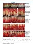 Elektronischer Sonderdruck für Deckung parodontaler Rezessionen ... - Seite 7