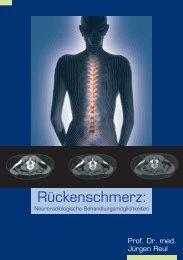 Rückenschmerz: - Prof. Dr. Reul