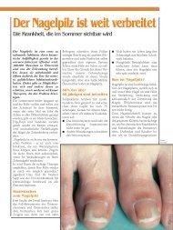 Der Nagelpilz ist weit verbreitet - Pro Patient online