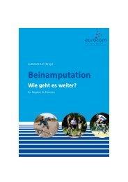 Beinamputation Wie geht es weiter? - Dr. med. Wolfgang Mertens
