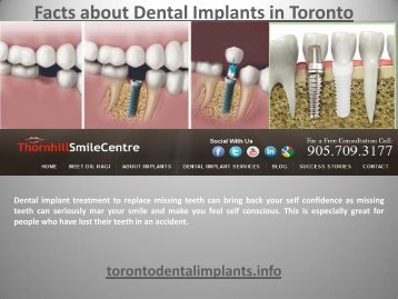 Facts about Dental Implants in Toronto