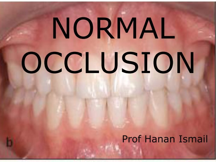 normal occlusion and its characteristics Young adult caucasian males with normal occlusion: its application to orthodontic characteristics of nt occlusion in young.