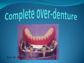 Types of tooth supported Over-dentures