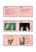 1 Pathogenese-orientierte Therapie rheumatischer Erkrankungen ... - Page 5