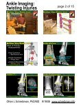 Ankle Imaging: Twisting Injuries - Page 2