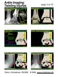 Ankle Imaging: Twisting Injuries - Page 3