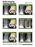 Ankle Imaging: Twisting Injuries - Page 4