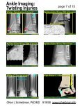 Ankle Imaging: Twisting Injuries - Page 7