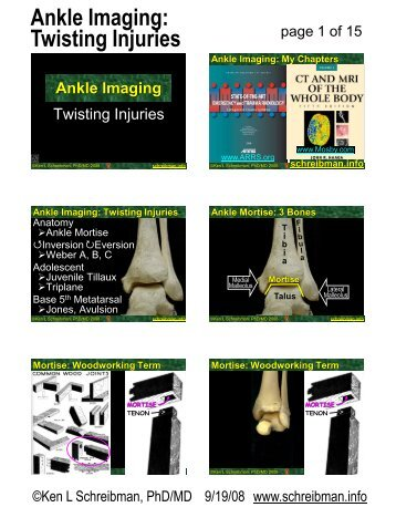 Ankle Imaging: Twisting Injuries
