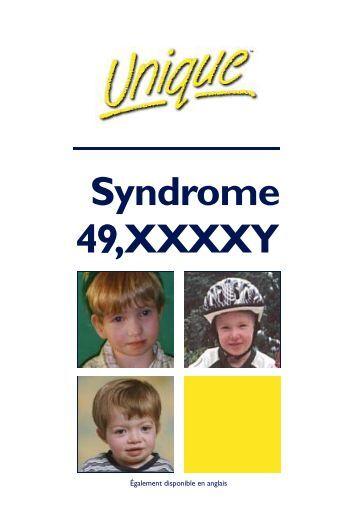 Xxxxy Syndrome Syndrome 49,XXX...