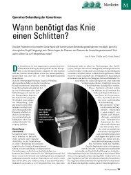 Wann benötigt das Knie einen Schlitten? - ratgeber-fitness.de