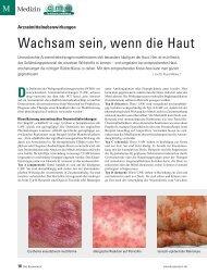 Wachsam sein, wenn die Haut - ratgeber-fitness.de