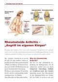 Rheumatoide Arthritis – - Ratiopharm - Seite 2