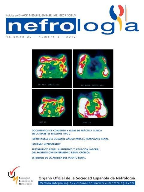 folletos sobre diabetes en el idioma napoli