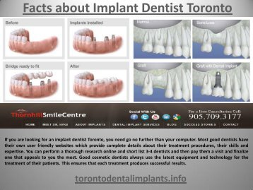Facts about Implant Dentist Toronto