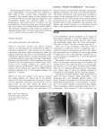 The incidence of C5–C6 radiculopathy as a complication of ... - Page 3