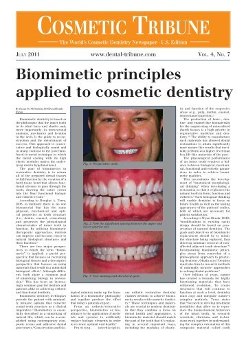 Biomimetic principles applied to cosmetic dentistry - Health Mantra