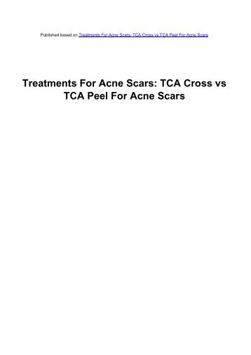 Treatments For Acne Scars - Acne Scars Remedy