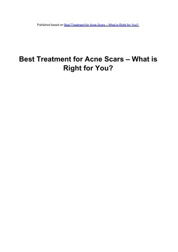 Best Treatment for Acne Scars – What is Right for You?