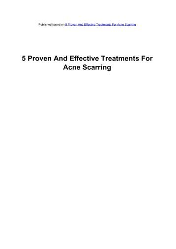 5 Proven And Effective Treatments For Acne Scarring - Acne Scars ...