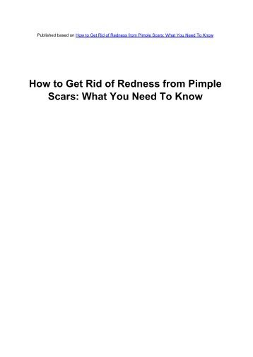 How To Get Rid Of Redness From Pimple - Acne Scars Remedy