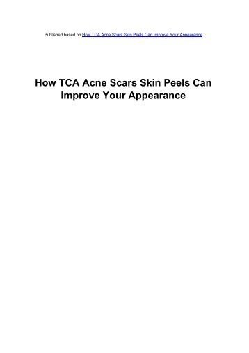 How TCA Acne Scars Skin Peels Can Improve - Acne Scars Remedy