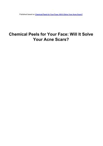 Chemical Peels for Your Face: Will It Solve - Acne Scars Remedy
