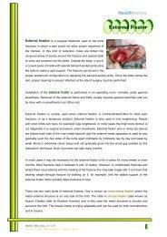 External Fixator - Healthtronics.com.my