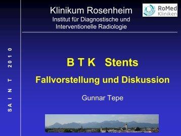 Unterschenkel-Stent – Fallvorstellung & Diskussion - Saint