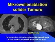 Mikrowellenablation solider Tumoren – was spricht dafür? - Saint