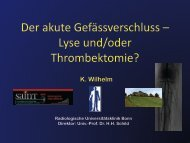 Der akute Gefäßverschluss – Lyse und/oder Thrombektomie? - Saint