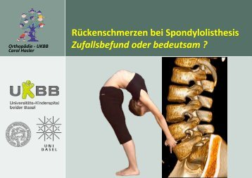 Rückenschmerzen bei Spondylolisthesis ... - bei der SAMM