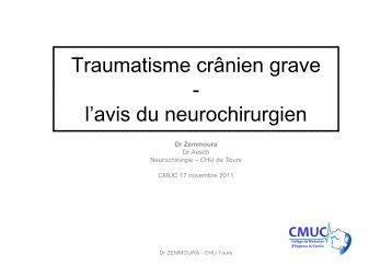 Traumatisme crânien grave avis du neurochirurgien.