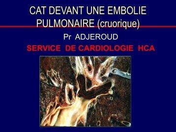 CAT DEVANT UNE EMBOLIE PULMONAIRE