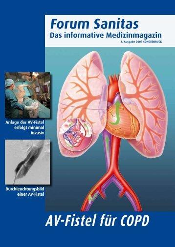 AV-Fistel für COPD