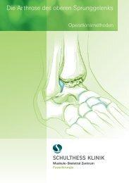 Die Arthrose des oberen Sprunggelenks - Schulthess Klinik