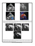 Real-Time Color-Flow CMR in Adults with - Society of ... - Page 5