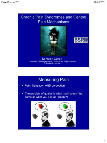Fibromyalgia and Central Pain Mechanisms