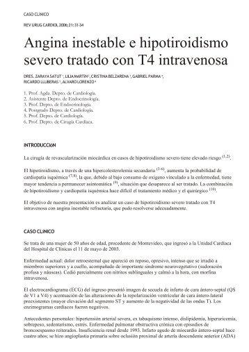 Angina inestable e hipotiroidismo severo tratado con T4 ... - SciELO