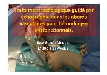 traitement radiologique de l'abord vasculaire pour ... - SFAV