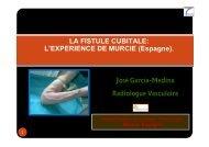 fistules cubitales - SFAV