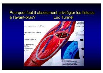 Fistule huméro-humérale - SFAV